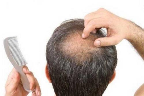 مراقبت بعد از عمل زیبایی مو