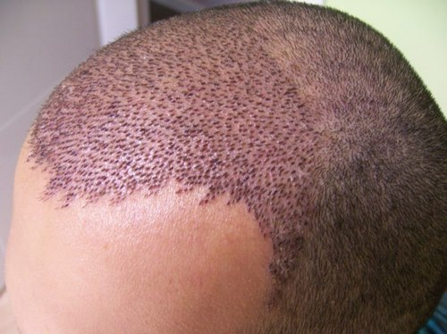 بهترین کلینیک کاشت مو در مشهد