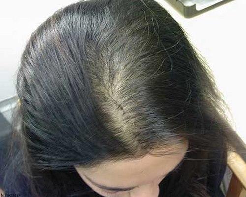 کاشت موی سر در مشهد
