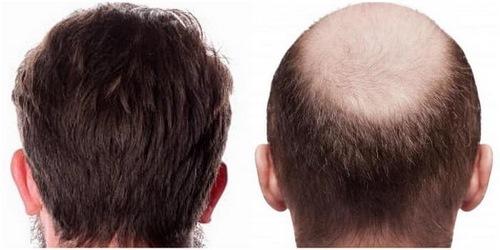 کاشت مو به روش hrt در مشهد