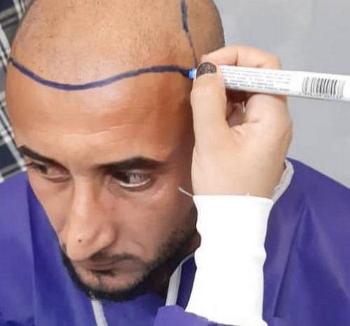 بهترین مرکز کاشت مو در مشهد