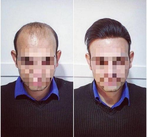 بهترین متخصص کاشت مو در مشهد