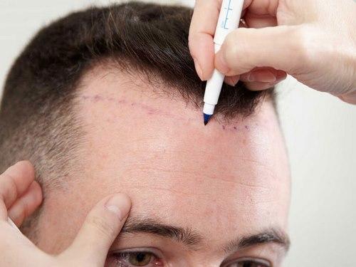 کاشت مو در مشهد آدرس