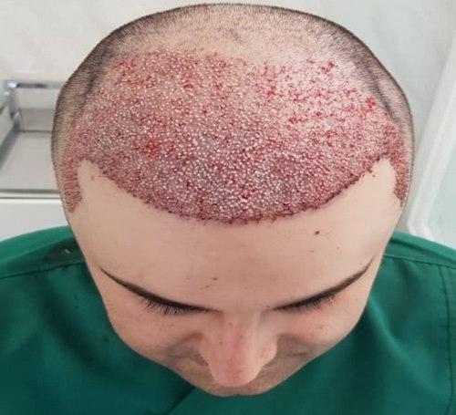 کاشت مو به روش super fue در مشهد