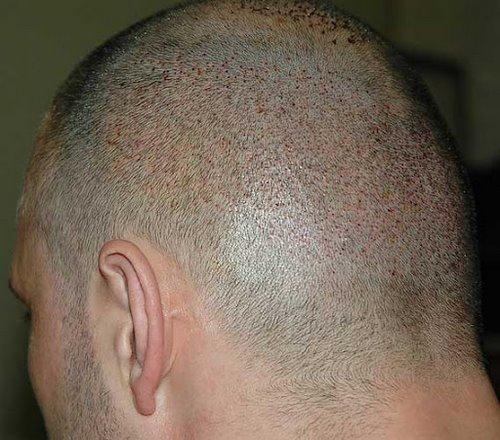 کاشت مو به روش bht در مشهد