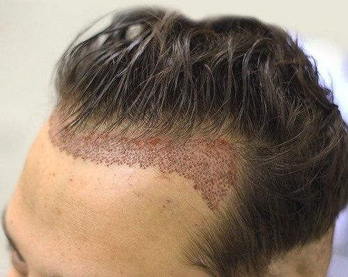 کاشت مو در مشهد به روش sut