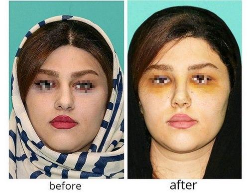 دکتر جراحی بینی در مشهد