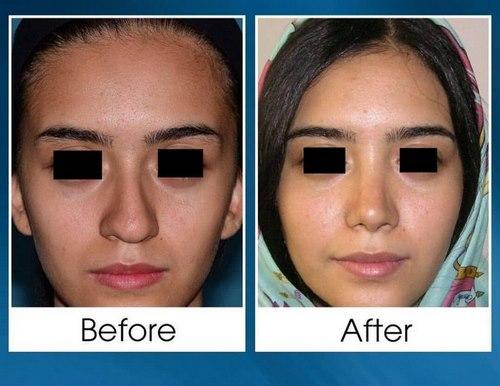 دکتر نعیمی جراح بینی در مشهد