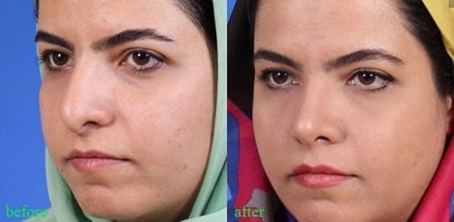 بهترین دکتر جراح بینی در مشهد