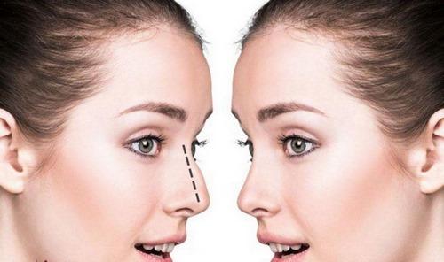 تغذیه و جراحی بینی زیر نظر متخصص جراحی بینی مشهد