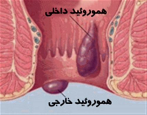 درمان بواسیر در طب سنتی