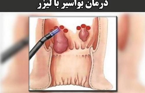 درمان بواسیر در طب سنتی و اسلامی