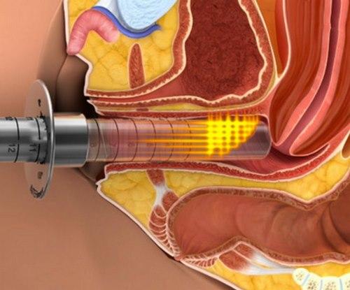 درمان عفونت باکتریایی واژن در طب سنتی