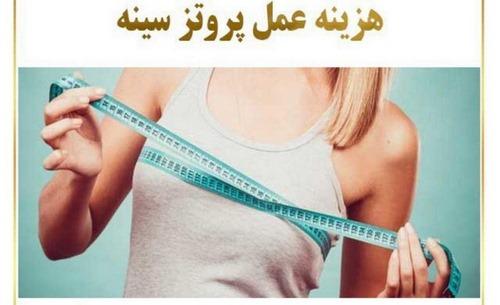 هزینه پروتز سینه در مشهد
