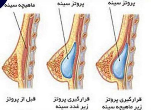 دکتر پروتز سینه در مشهد