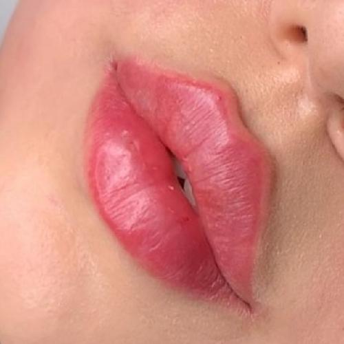 روش Botox لب