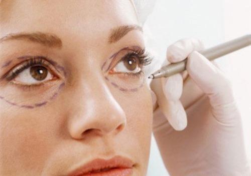 تزریق ژل زیر چشم برای رفع چروک