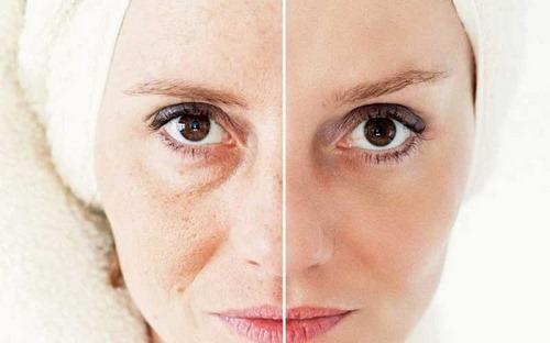 تزریق ژل زیر چشم به روش نانوفت