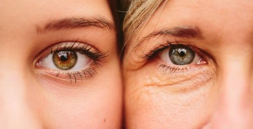 ماندگاری تزریق ژل زیر چشم