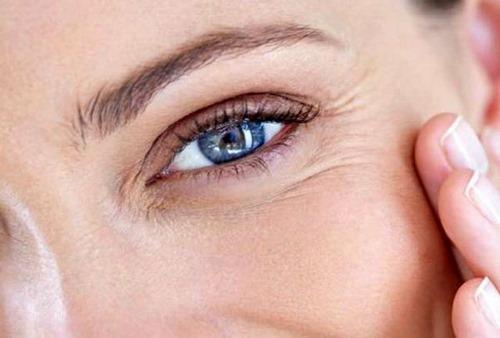 تزریق ژل زیر چشم درد دارد؟