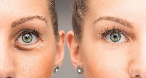 تزریق ژل زیر چشم برای رفع گودی