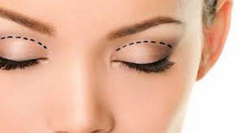 متخصص جراحی زیبایی پلک در مشهد
