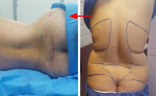 دکتر جراحی زیبایی شکم در مشهد
