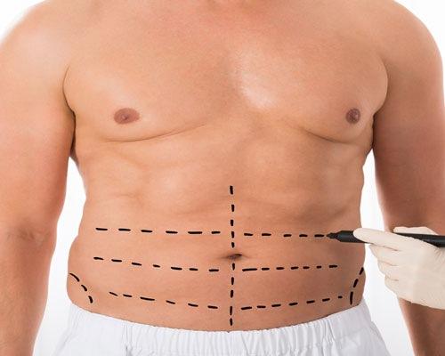 جراحی زیبایی شکم و عوارض آن