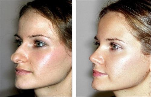 عوارض بعد از عمل زیبایی بینی