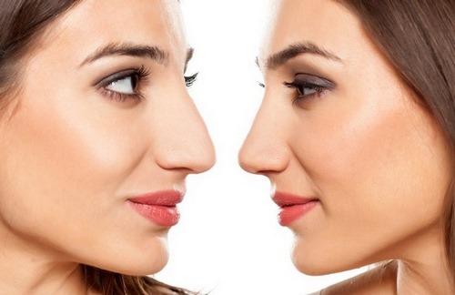 عوارض جراحی زیبایی بینی های گوشتی
