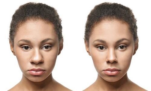 عوارض زیبایی بینی بدون عمل جراحی زیبایی