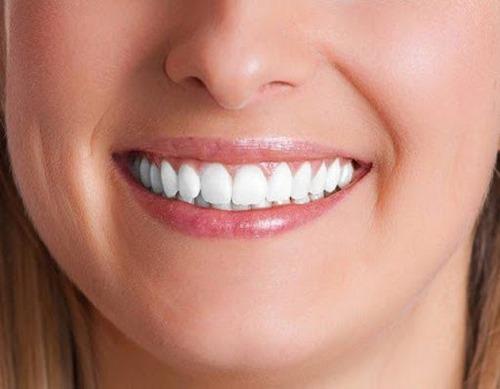 لمینت دندان یا بلیچینگ