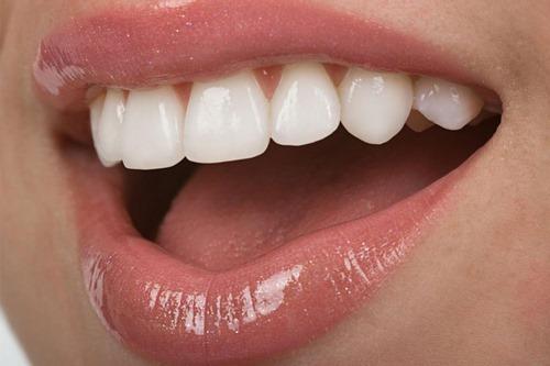 لمینت دندان روکش شده