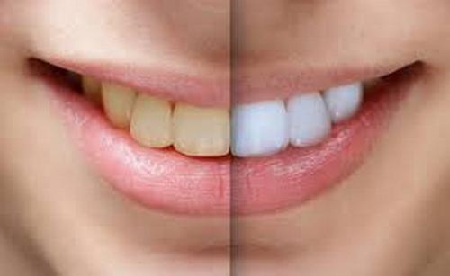 برداشتن روکش دندان