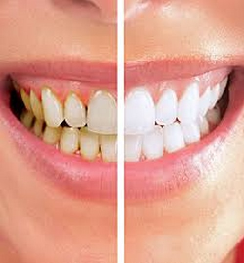 لمینت دندان رنگ طبیعی