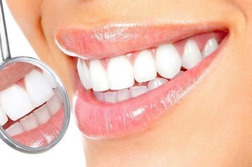لمینت دندان یا کامپوزیت