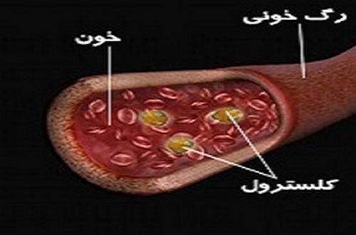 درمان چربی خون بالا در طب سنتی