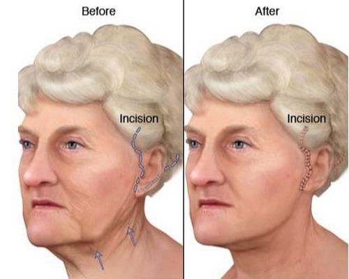 لیفت گردن با جراحی