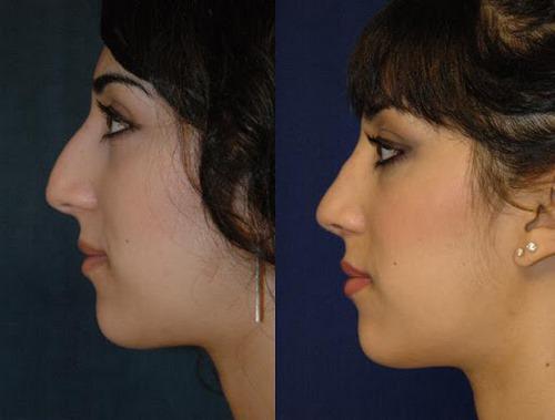 رسپینگ بینی بعد از عمل