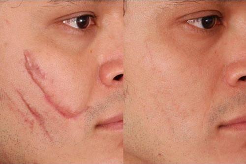 استفاده از کلاژن حیوانات در جهت بهبود زخم