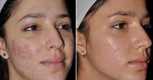 پیوند پوست برای جای سوختگی