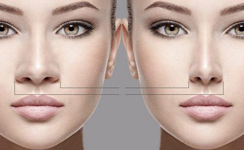 تزریق آنزیم در بینی
