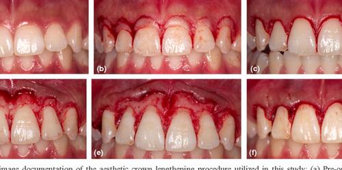 جراحی دندان مشهد