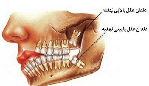 جراحی دندان عقل در مشهد