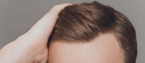 پیوند مو از دیگران