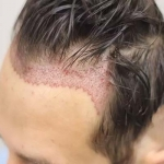 پیوند مو چیست