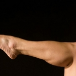 تزریق چربی به ساق پا ممکن است