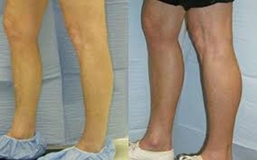تزریق چربی به ساق پا مشهد