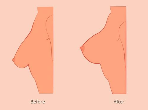 تزریق چربی بدن به سینه