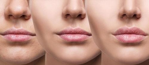 تزریق چربی به لب بهتر است یا ژل